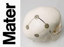 Cierre craneal BHID (Burr Hole Immobilizing Device) de Neos Surgery S.L.- Fotografía de Xavier Padrós